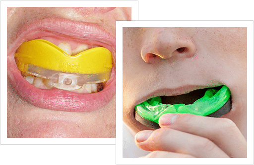 mouthguards-img2