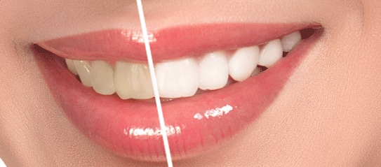 Porcelain Veneers / Smile Makeovers