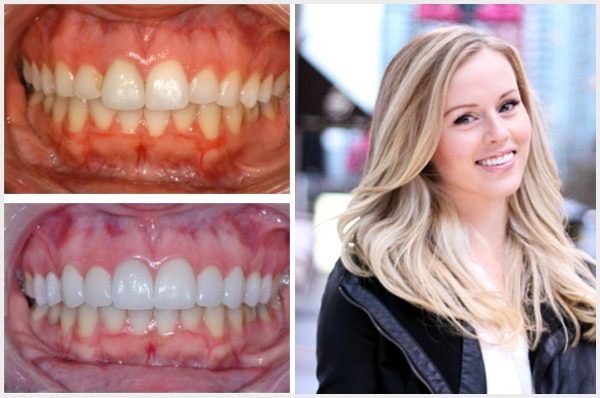 Vernon_Dental_Centre_Smile_Galley_Mobile_Ashley