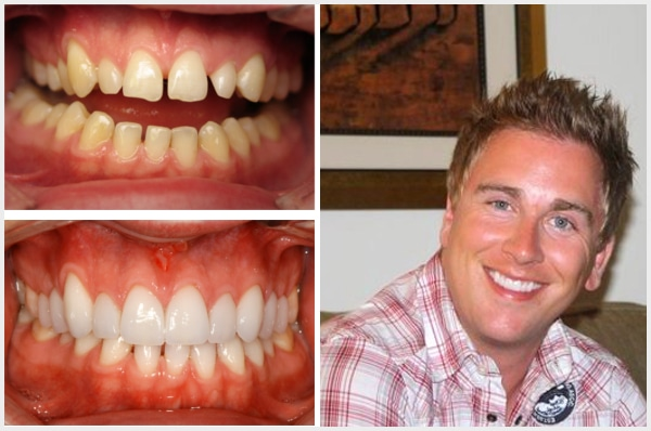 Vernon_Dental_Centre_Smile_Galley_Mobile_Chris