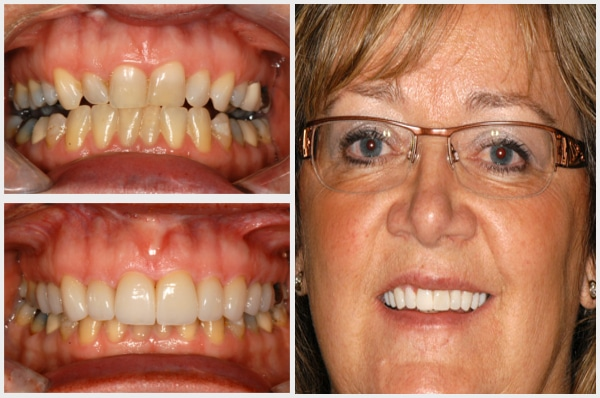 Vernon_Dental_Centre_Smile_Galley_Mobile_Debbie